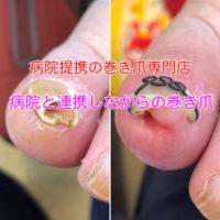 巻き爪矯正 静岡県西部袋井巻き爪矯正センター