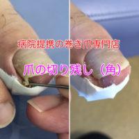 巻き爪矯正 爪の切り残し 静岡県西部袋井巻き爪矯正センター