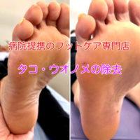 フットケア タコ・ウオノメの除去 静岡県西部袋井巻き爪矯正センター