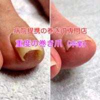 浜松市の巻き爪治療 巻き爪矯正のビフォーアフターの写真