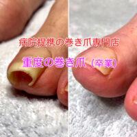 浜松市の巻き爪治療 巻き爪矯正のビフォーアフター写真