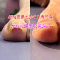 掛川市の巻き爪治療 巻き爪矯正のビフォーアフター写真